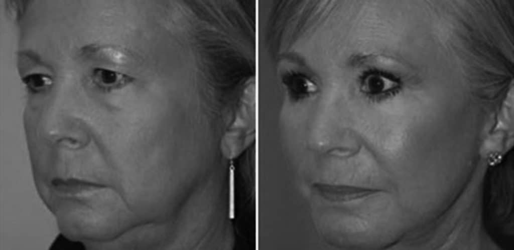 Ansiktslyft - före och efter