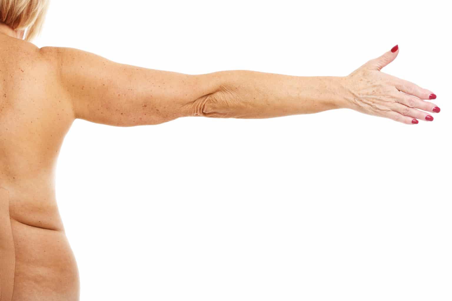 Armplastik hos Plastikkirurgen Stockholm