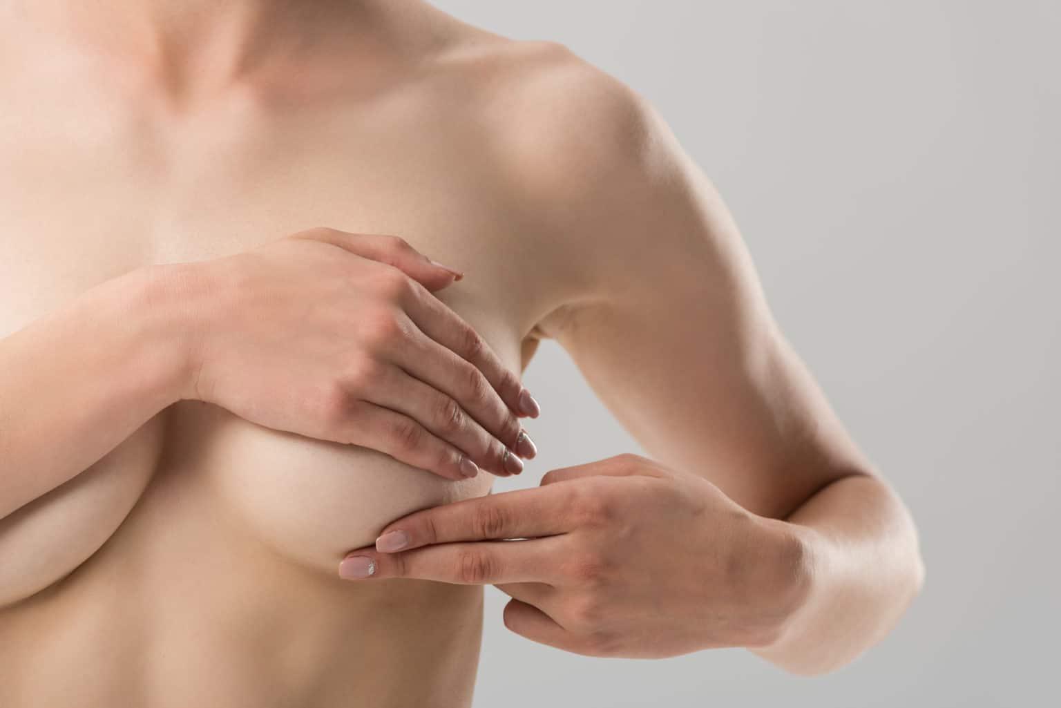 Efter bröstförminskning, kvinna täcker bröstvårta