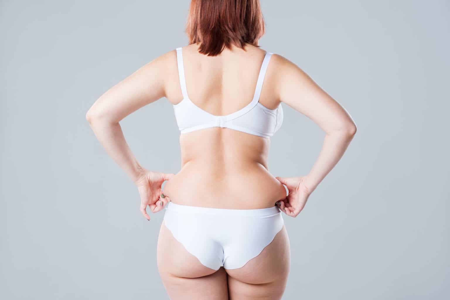 Fettsugning överviktig kvinna