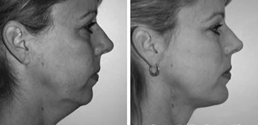 Före- och efterbild på halsplastik taget från vänster