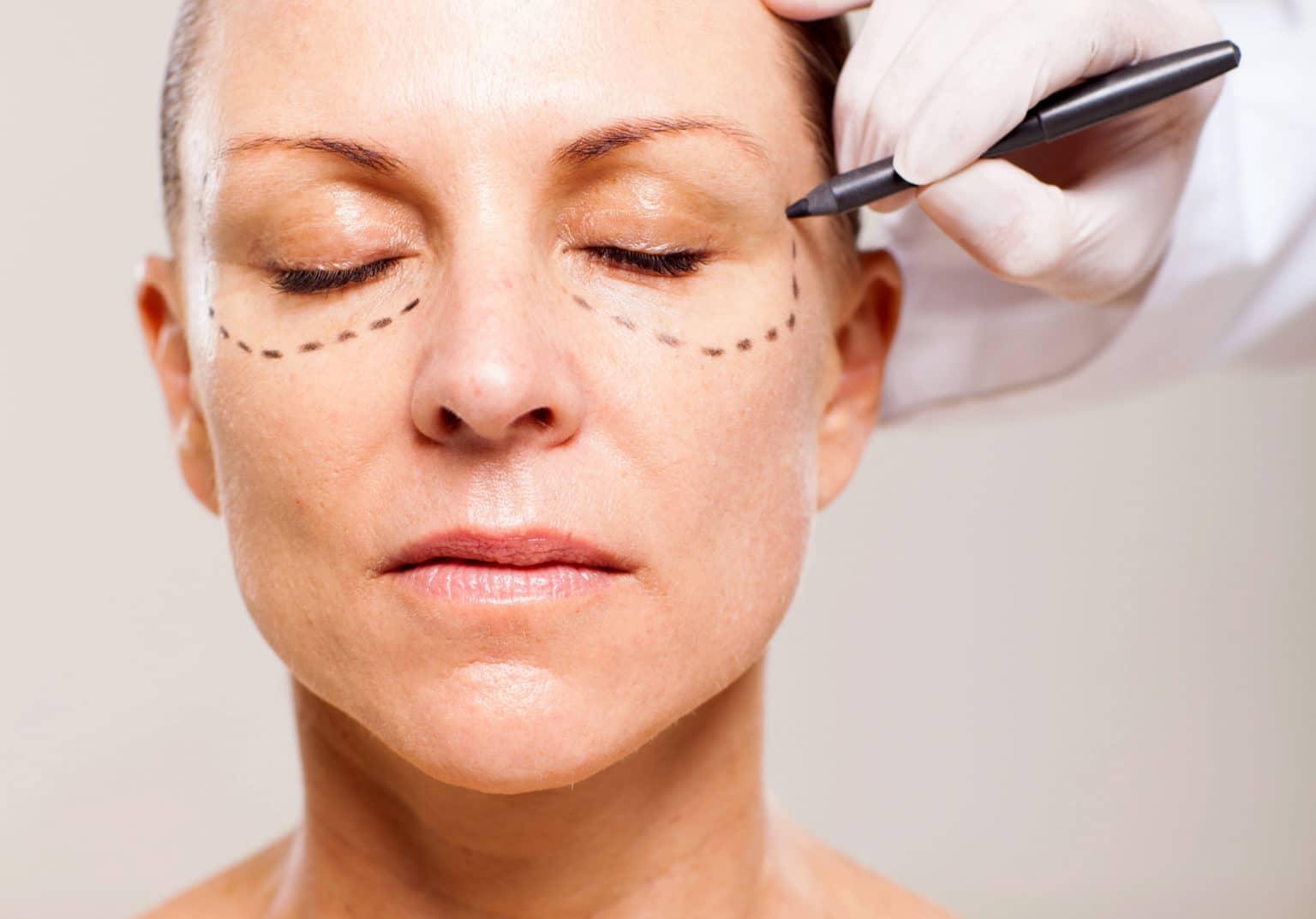 innan en ögonlocksoperation
