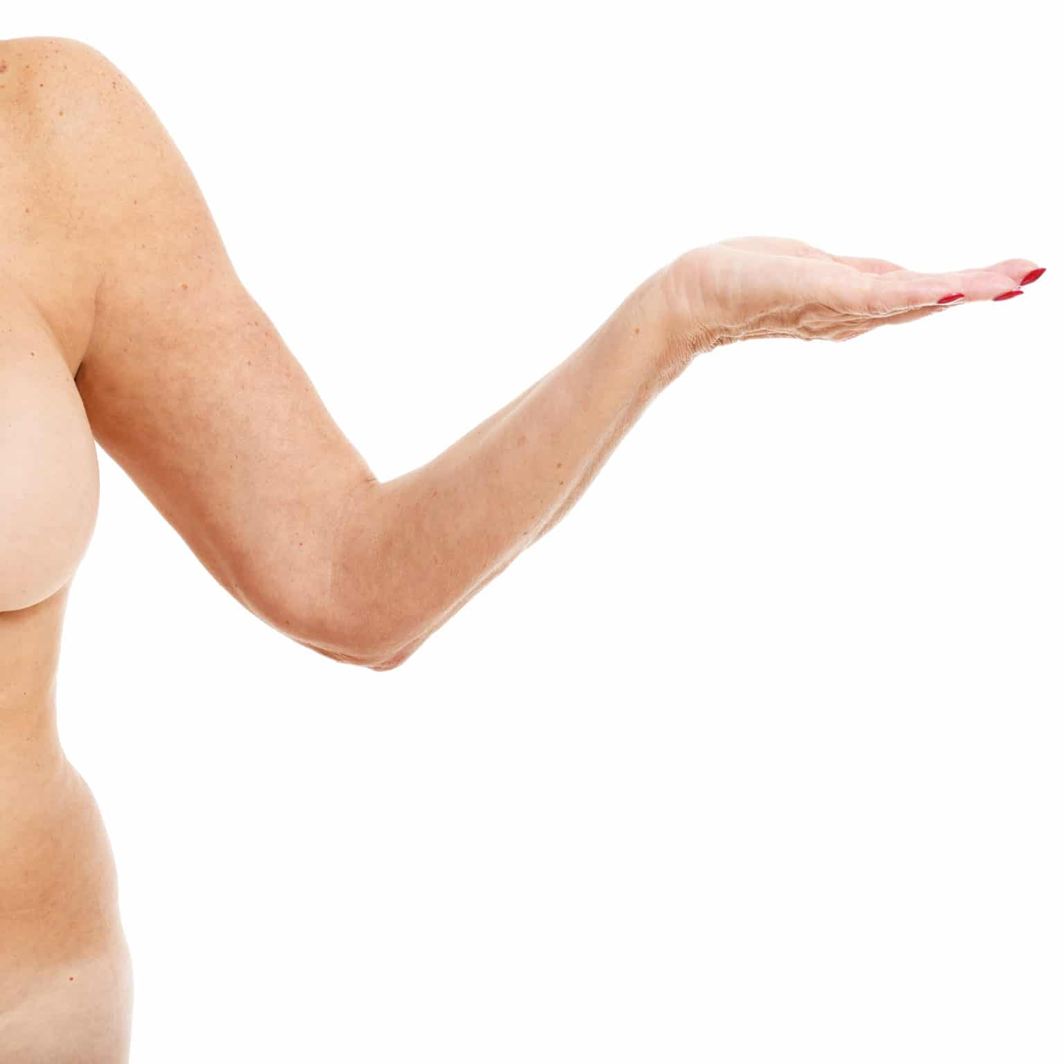 Överviktig kvinna Innan en operation av arm