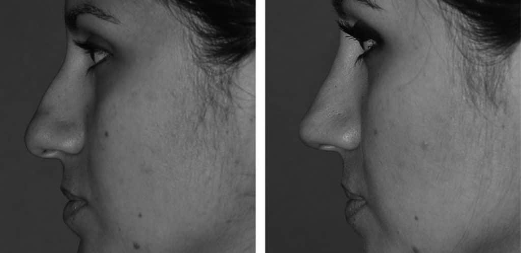 Före- och efterbild på näsplastik taget från vänster