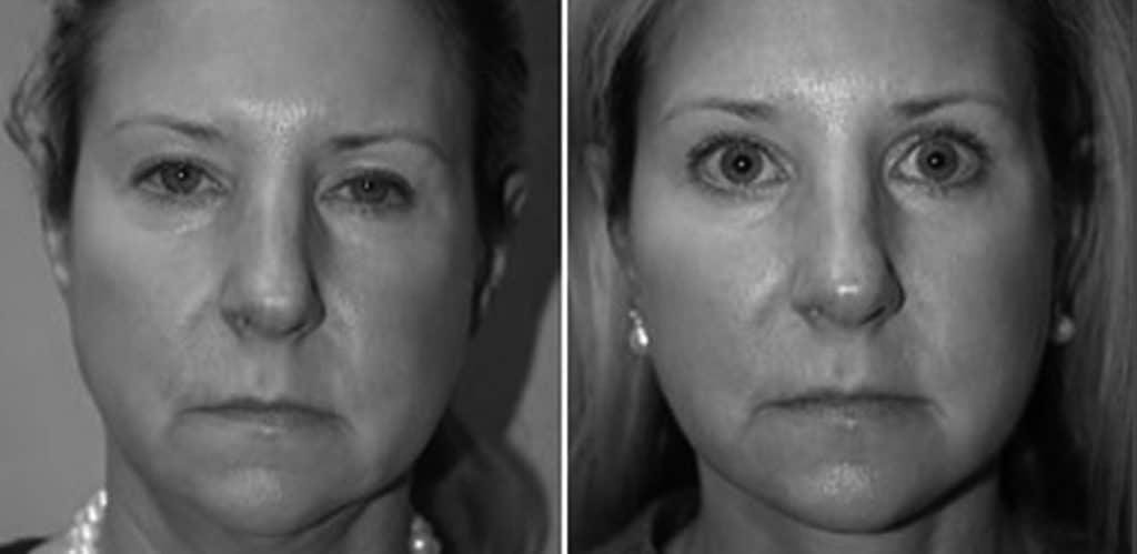 Före- och efterbild på ett ögonbrynslyft sett framifrån
