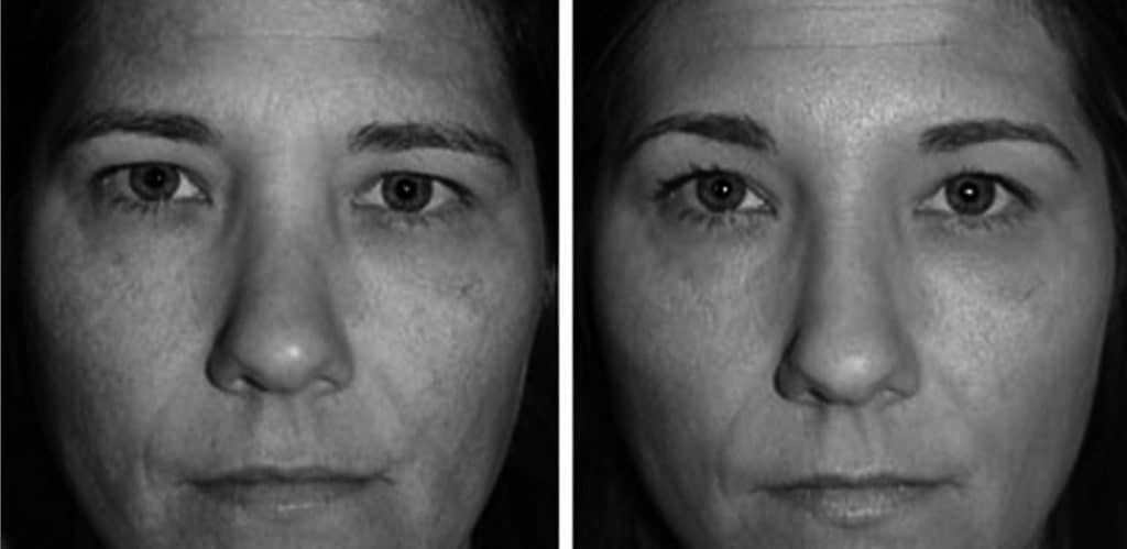 Före- och efterbild på ögonbrynsplastik sett framifrån