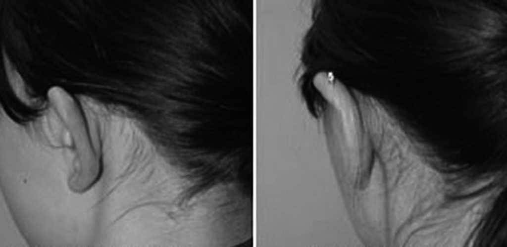Före- och efterbild på öronplastik